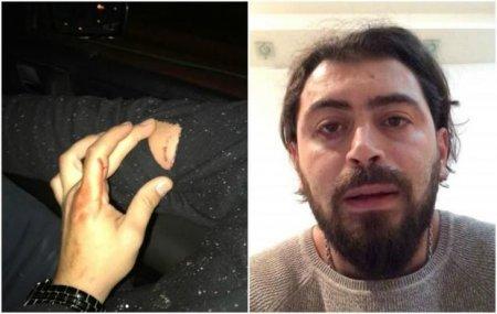 Küçə itləri azərbaycanlı reperə hücum etdi – FOTO